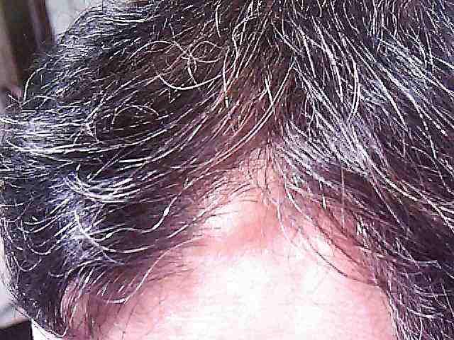 前髪生え際左側
