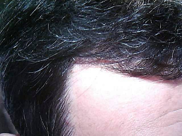 前髪生え際右側