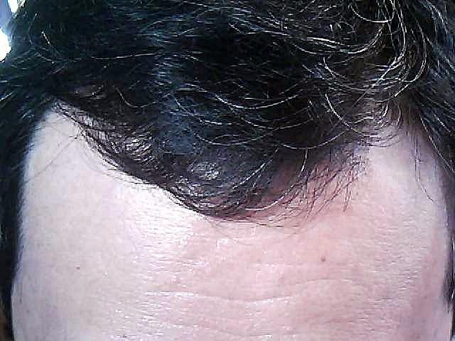 前髪の様子