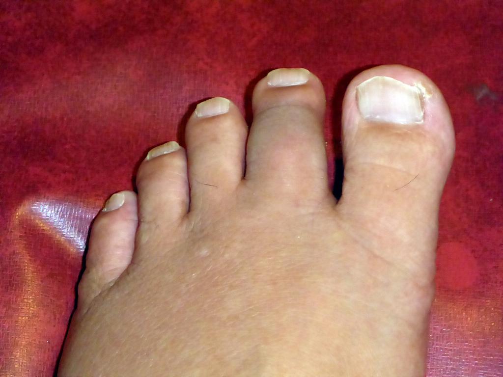左足人差し指の腫れ